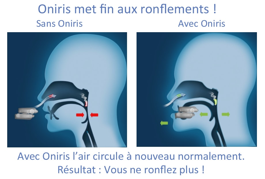 oniris ronflement