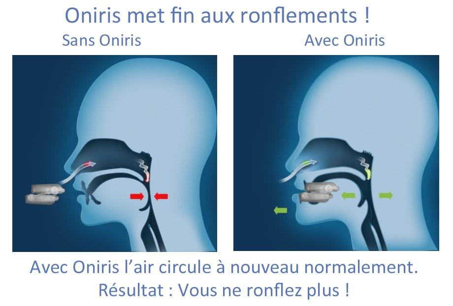 oniris ronflement