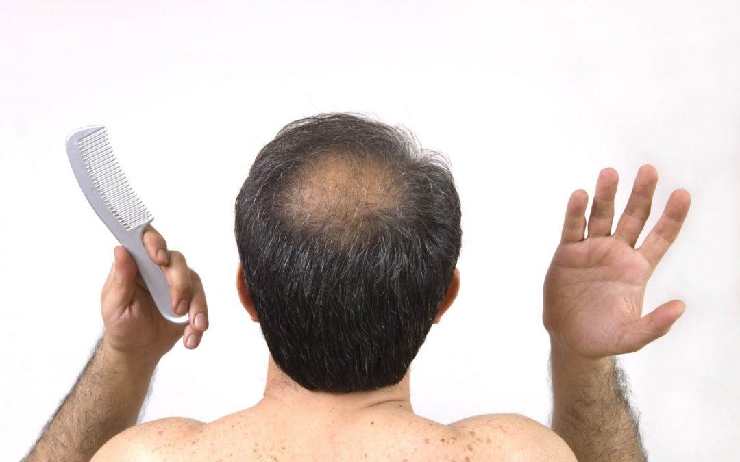 Comment soigner la perte de cheveux chez l'homme ?