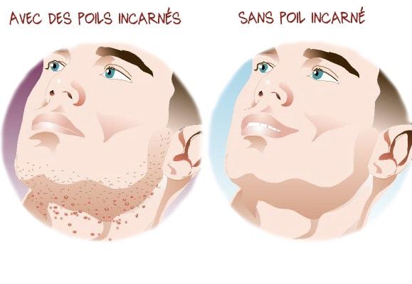 poil incarné à la barbe