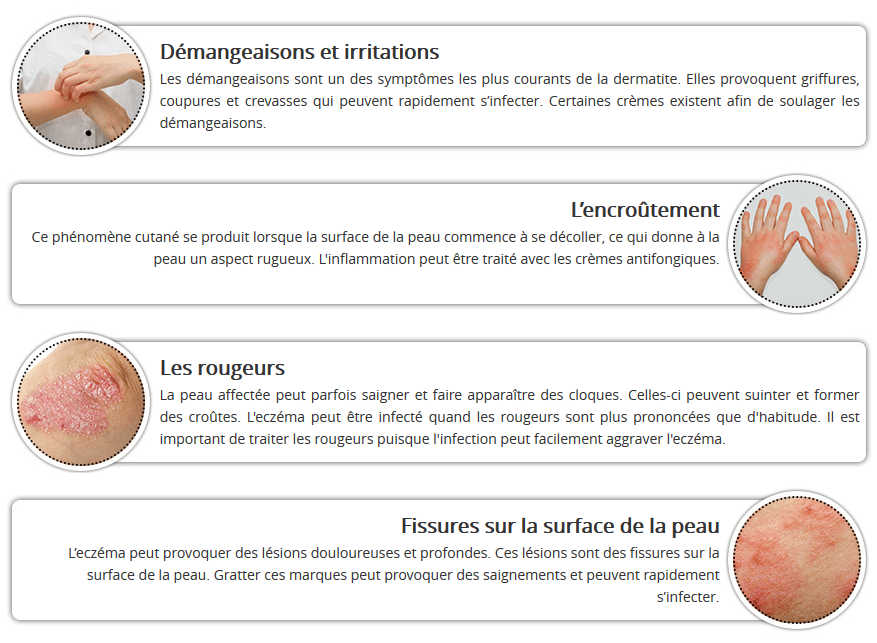 eczema symptomes