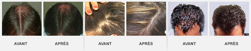 hairmax avant apres