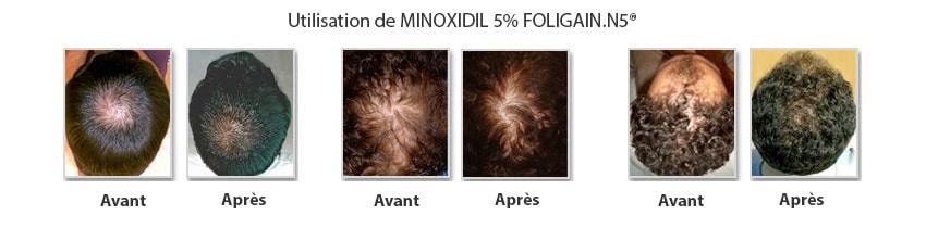 minoxidil avant apres