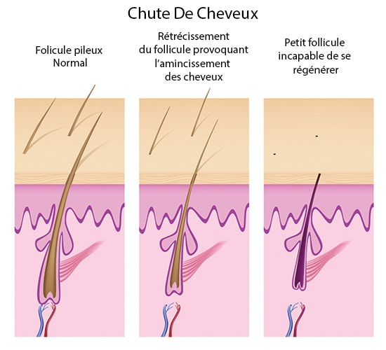 minoxidil chute de cheveux
