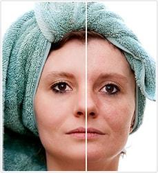 acn rosac e traitement naturel efficace pour soigner la rosac e du visage. Black Bedroom Furniture Sets. Home Design Ideas