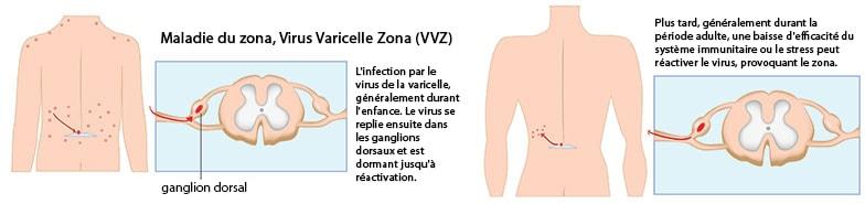zona symptômes