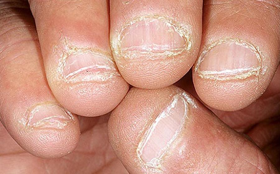 ongles rongés avant après