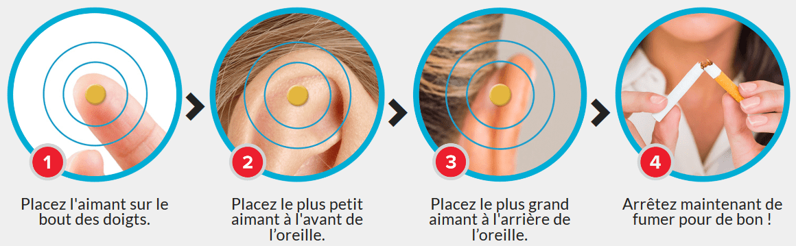 aimant auriculaire anti tabac